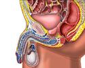 Enlarged prostate gland