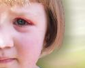 Treating eyelid bumps