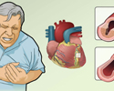 Angina causes and symptoms