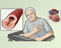 Coronary artery disease - overview