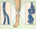 Varicose veins - overview