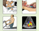 Types of echocardiography