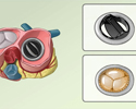 Heart valve replacement - overview